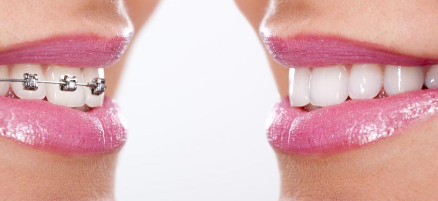 Depositphotos_dientes y brakes