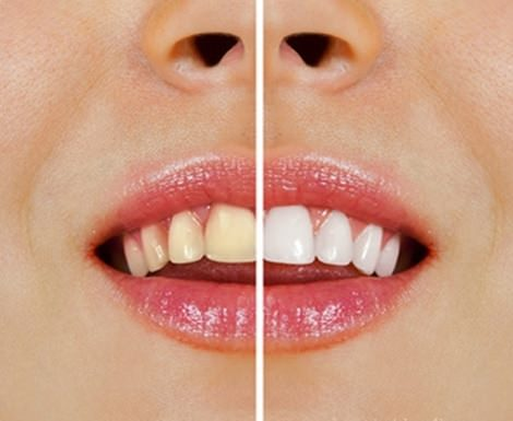 blanquear-dientes-trucos