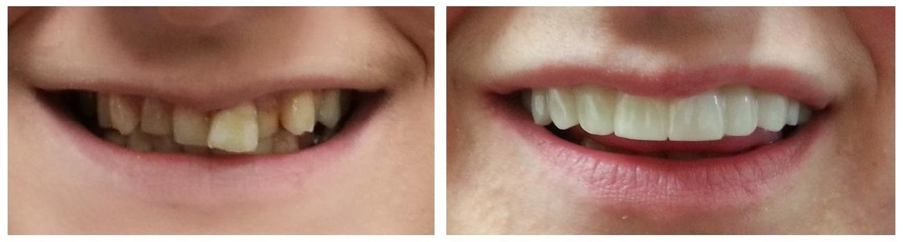 antes-y-despues-tratamientos-dentales