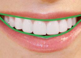dientes-perfectos-alineados