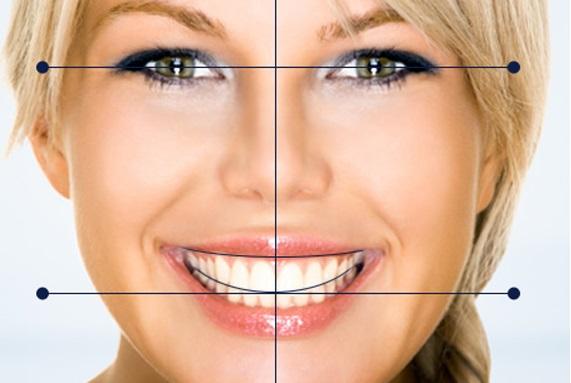 dientes-perfectos-claves