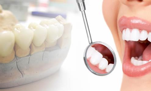 protesico dental